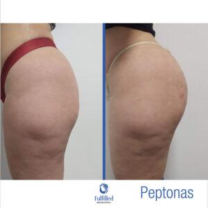 peptonas4Insta-02